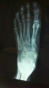 What is a Foot Fracture
